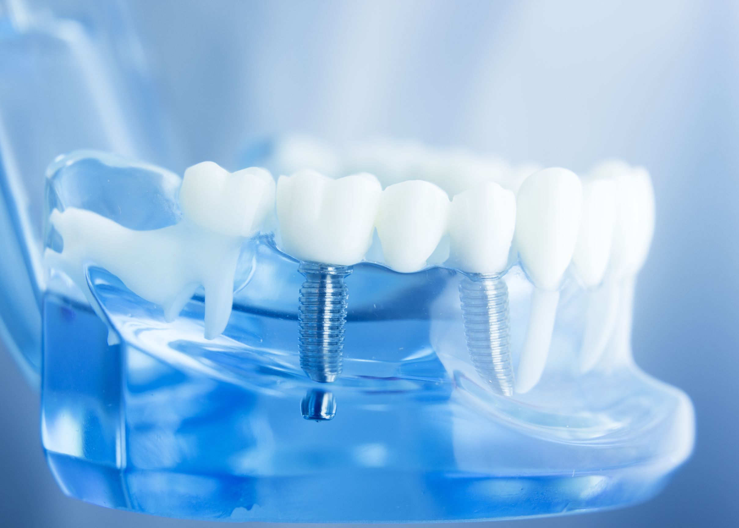 best-dentist-dental-implants-tucson-az-usa